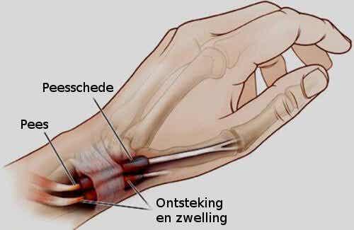 Peesschedeontsteking in de handen en voeten