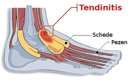 Tendinitis in de voet