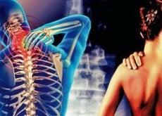 cervicobrachiaal-syndrome