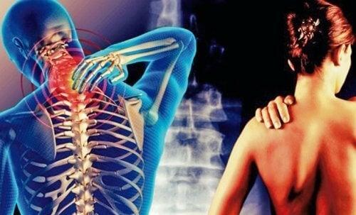 Cervicobrachiaal syndroom: pijn die vanuit de nek naar de armen uitstraalt