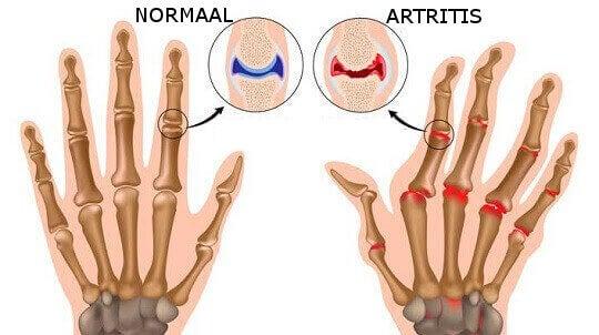 Artritis in de Hand