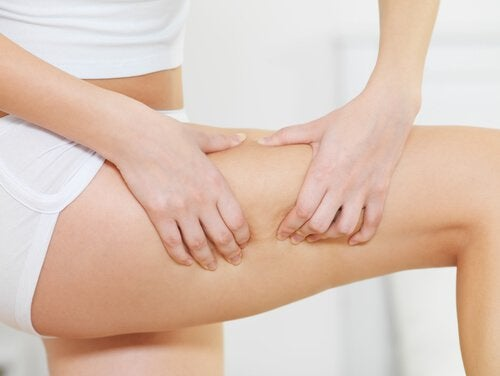 Cellulite op het Bovenbeen