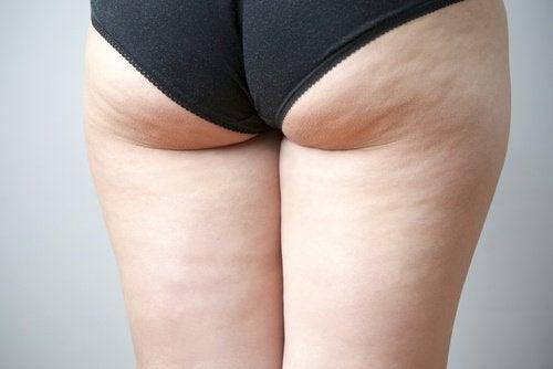 Afbeeldingsresultaat voor cellulite