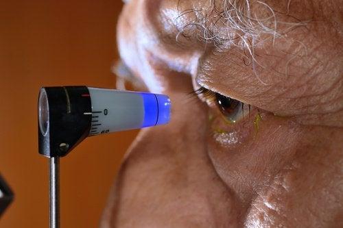 Natuurlijke manieren om glaucoom te voorkomen