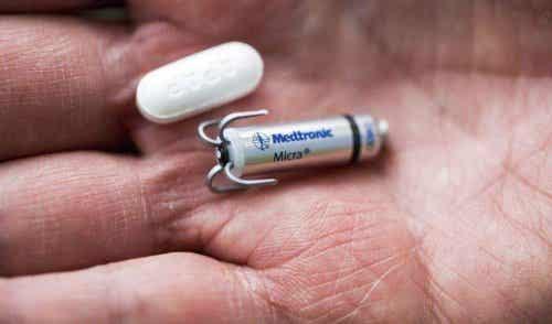 Micra: 's werelds kleinste draadloze pacemaker