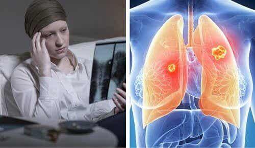 Longkanker is nu dodelijker voor vrouwen dan andere kankersoorten