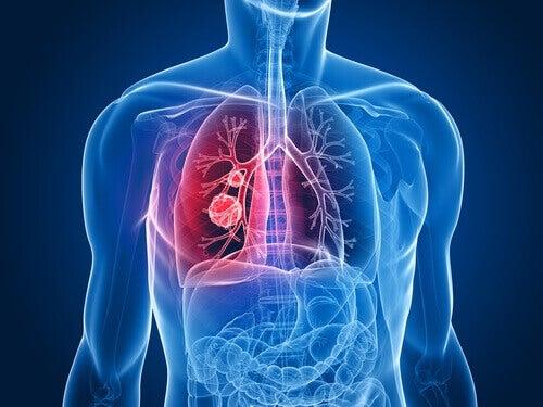 Longkanker onder vrouwen