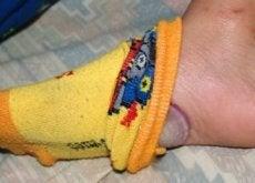 uien-voeten