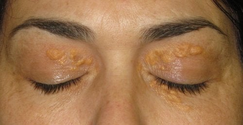 Xanthelasma: die witte vlekjes rondom de ogen