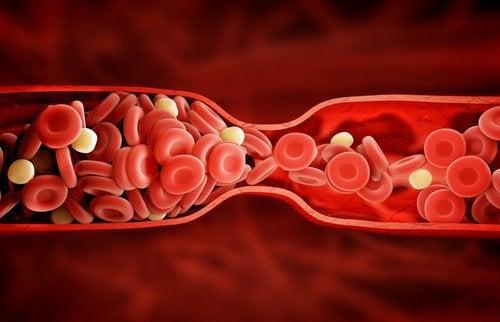 Een ongelofelijke nieuwe behandeling voor 'slecht' cholesterol