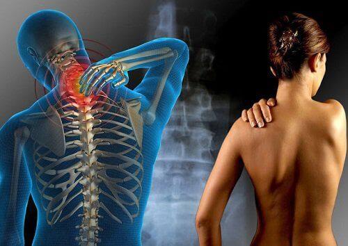 Een van de oorzaken van gewrichtspijn zou fibromyalgie kunnen zijn