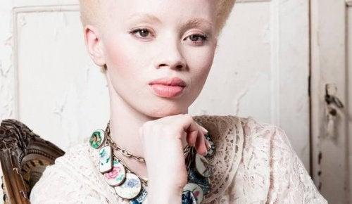 Albinisme: het verhaal van model Thando Hopa