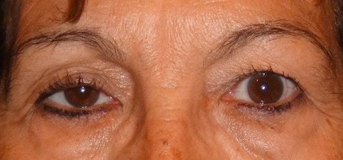 Hangende oogleden