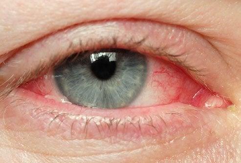 Natuurlijke middelen tegen geïrriteerde ogen