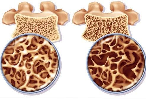 Oefeningen om osteoporose te behandelen en voorkomen