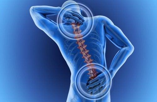 Pijn aan de ruggengraat