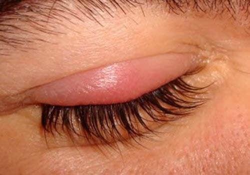 Strontje op het ooglid