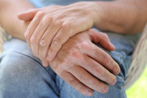 Huismiddeltjes om vitiligo te behandelen
