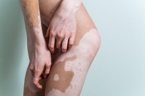 Vitiligo op de Benen en Armen