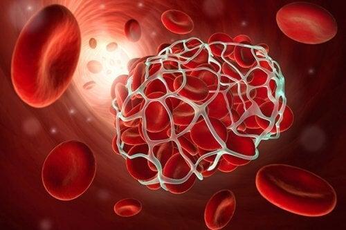 9 voedingsmiddelen trombose en beroerte kunnen helpen voorkomen