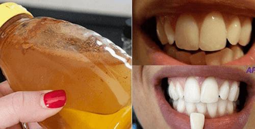 Witte tanden met een volledig natuurlijk product