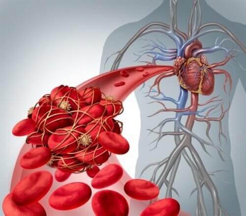 Bloedklonters die trombose kunnen veroorzaken