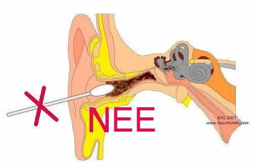 stop in oor zelf verwijderen