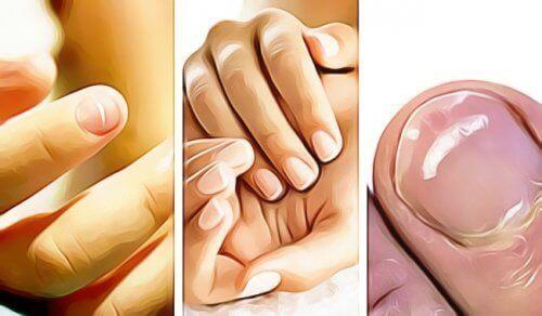 Vijf dingen die je nagels je vertellen over je gezondheid