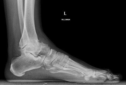 Röntgenfoto van de Enkel