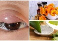 Natuurlijke Behandelingen voor Gerstekorrels