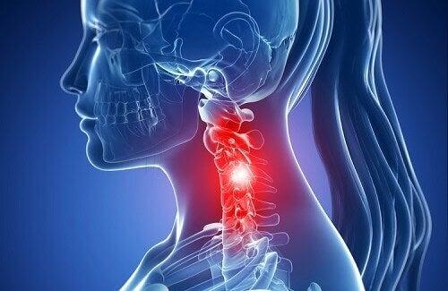 Cervicale spondylose: symptomen en behandelingen met natuurlijke middelen