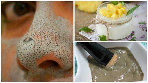 5 fantastische maskers om de huid te zuiveren van mee-eters