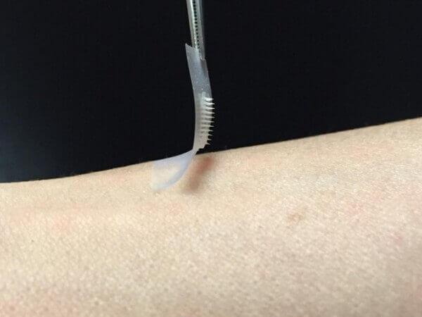 Insulinepleister