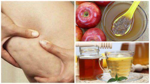 Bestrijd cellulite met honing en appelazijn