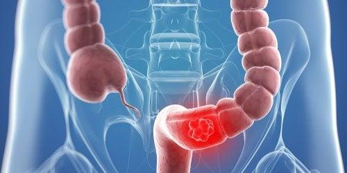 Bestrijd symptomen van kanker van de dikke darm met 9 natuurlijke hulpmiddelen
