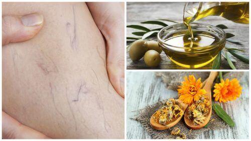 Spataderen bestrijden met olijfolie en goudsbloem