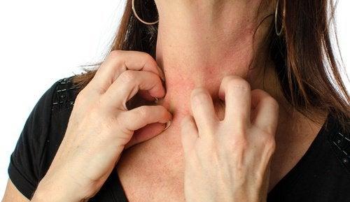 Effecten vanalcohol op je huid