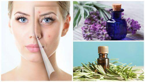 Raak acne kwijt met deze 6 geweldige etherische oliën