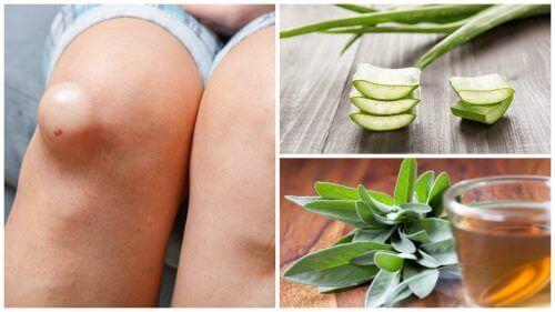 De 5 beste remedies om van kniezwellingen af te komen
