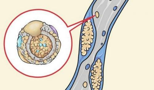 Verlaag je cholesterol door deze 6 strategieën te gebruiken in de keuken
