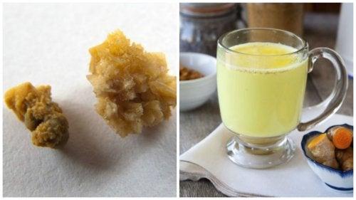 Ga nierstenen tegen metdeze thee van gember en kurkuma