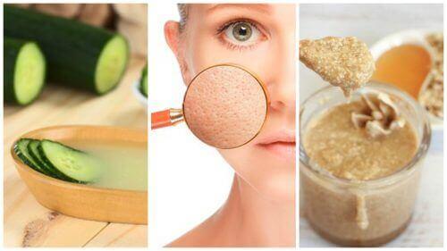 Vernauw je poriën met deze 5 natuurlijke remedies