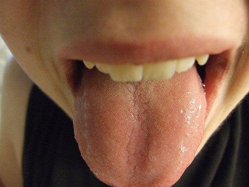 Blaren en rode puntjes op de tong
