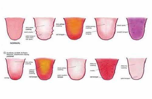 Wat de tong vertelt over je gezondheid