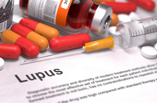 Lupus en medicatie