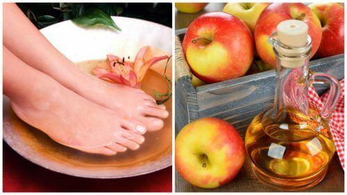 Gebruik azijn om je voeten te verzorgen