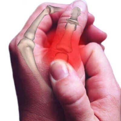 Ontwikkelingen in de behandeling van osteoartritis