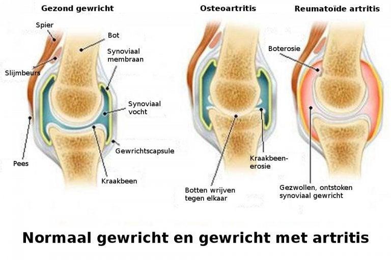 De verschillen tussen artritis, osteoartritis en osteoporose
