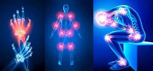 Zeven redenen waarom je last kunt hebben van pijnlijke gewrichten