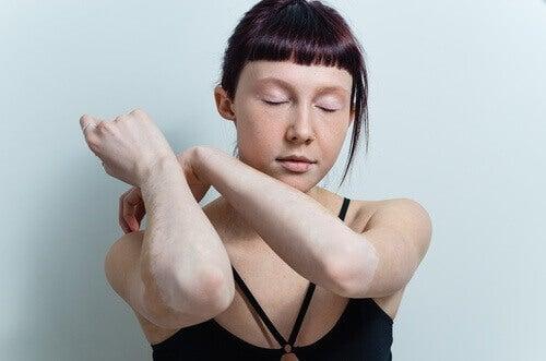 Vrouw met bleke armen door vitiligo